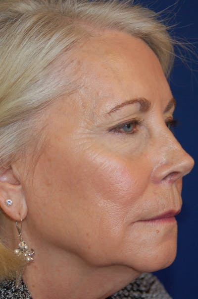 Facelift Gallery - Patient 10131855 - Image 1