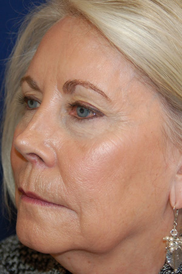 Eyelid Surgery Gallery - Patient 10380343 - Image 3