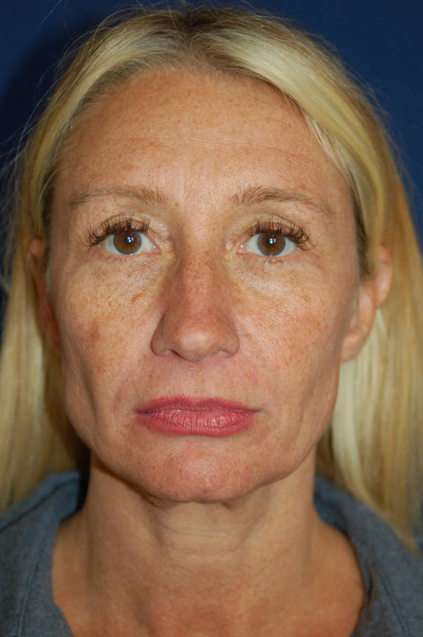 Facelift Gallery - Patient 10131869 - Image 1