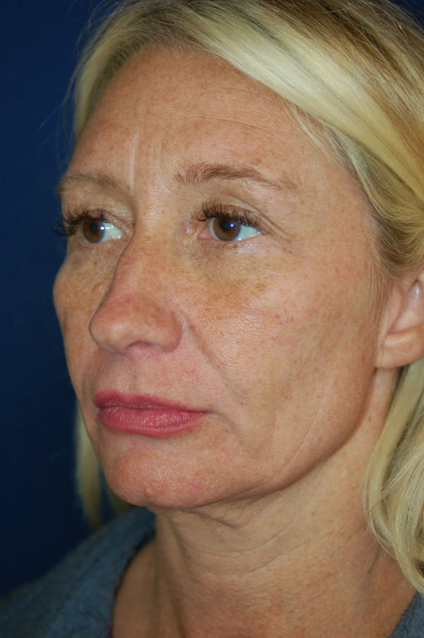 Facelift Gallery - Patient 10131869 - Image 3