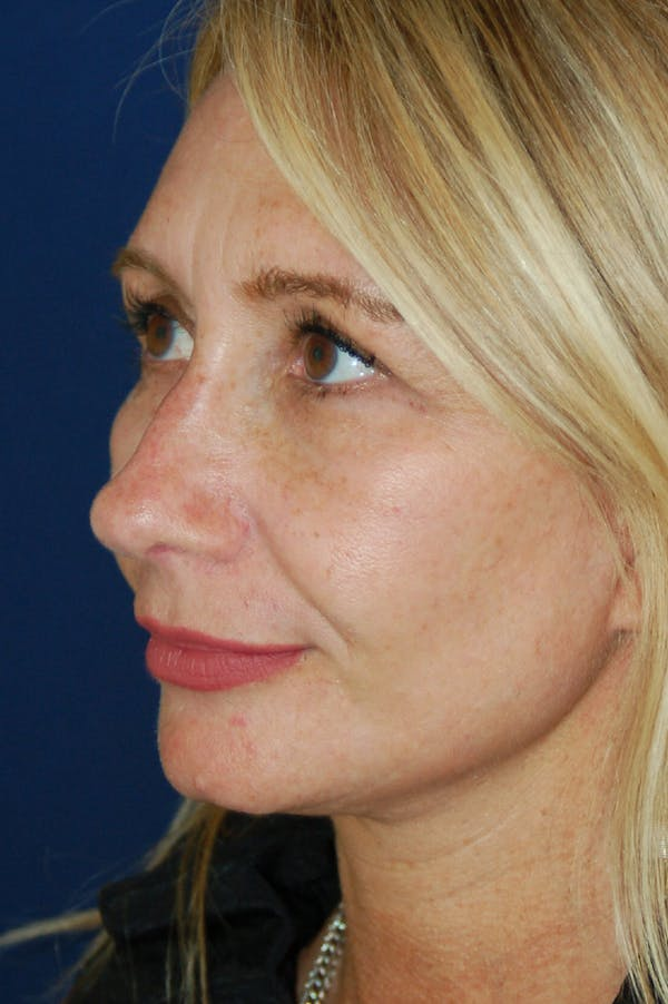 Facelift Gallery - Patient 10131869 - Image 4