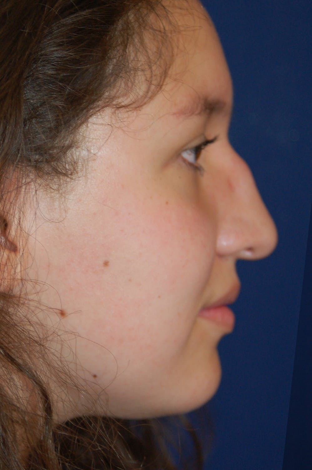 Rhinoplasty Gallery - Patient 10131883 - Image 1