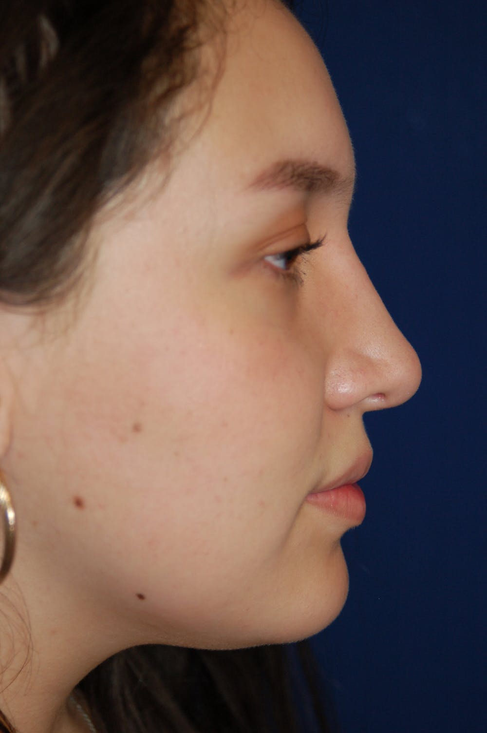Rhinoplasty Gallery - Patient 10131883 - Image 2