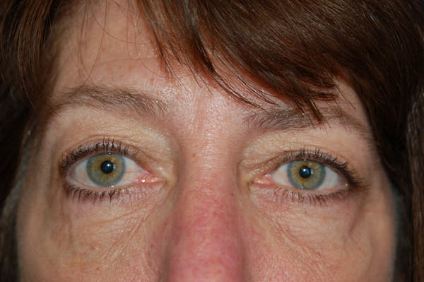 Eyelid Surgery Gallery - Patient 10131904 - Image 1