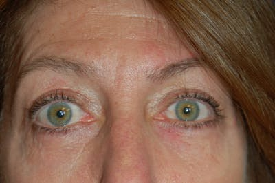 Eyelid Surgery Gallery - Patient 10131904 - Image 2