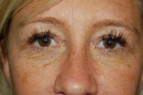 Eyelid Surgery Gallery - Patient 10131906 - Image 1