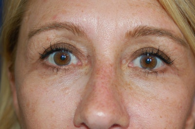 Eyelid Surgery Gallery - Patient 10131906 - Image 2