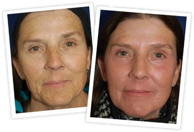 Chemical Peel / Skin Resurfacing Gallery - Patient 11264560 - Image 1