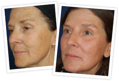 Chemical Peel / Skin Resurfacing Gallery - Patient 11264560 - Image 2