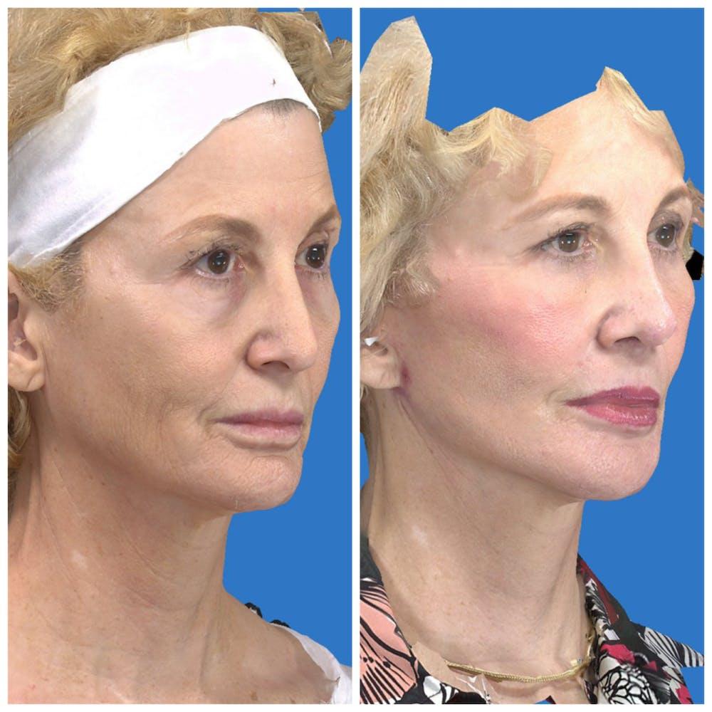 Facelift Gallery - Patient 14282332 - Image 2
