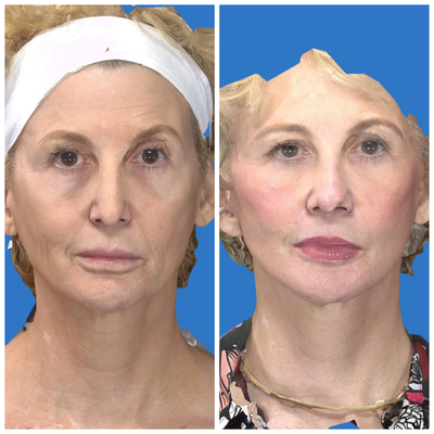 Facelift Gallery - Patient 14282332 - Image 1