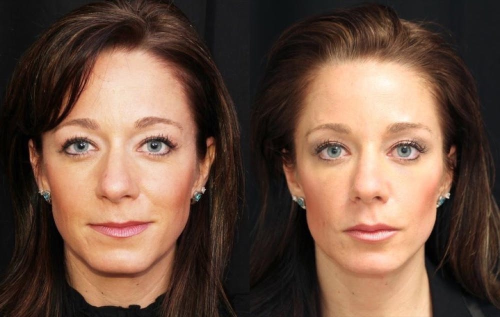 Aesthetic Facial Balancing Gallery - Patient 11681581 - Image 1