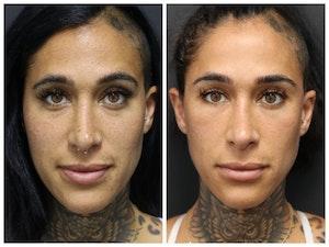 Aesthetic Facial Balancing