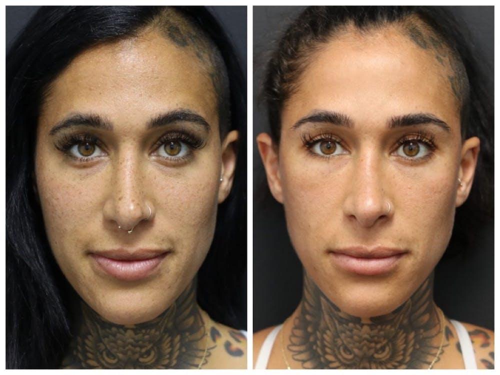 Aesthetic Facial Balancing Gallery - Patient 11681582 - Image 1