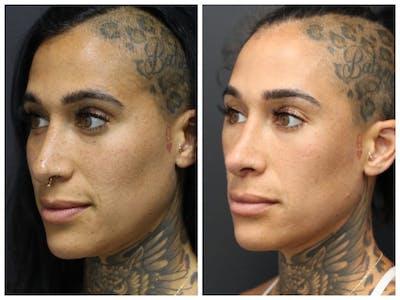 Aesthetic Facial Balancing Gallery - Patient 11681582 - Image 2