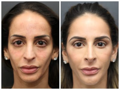 Aesthetic Facial Balancing Gallery - Patient 11681583 - Image 1