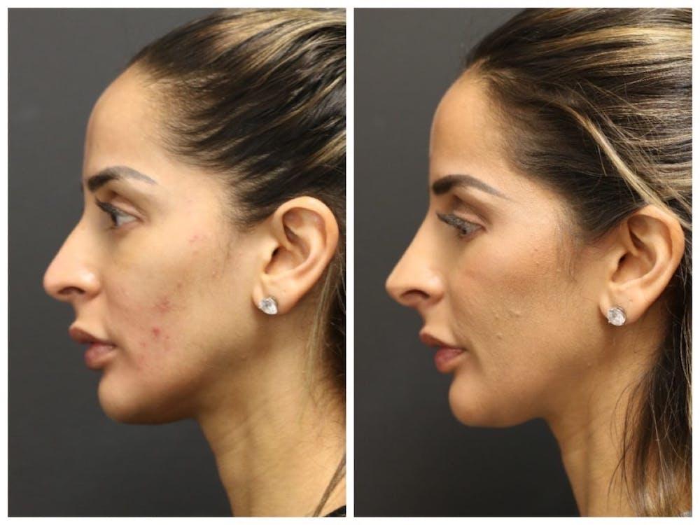 Aesthetic Facial Balancing Gallery - Patient 11681583 - Image 2