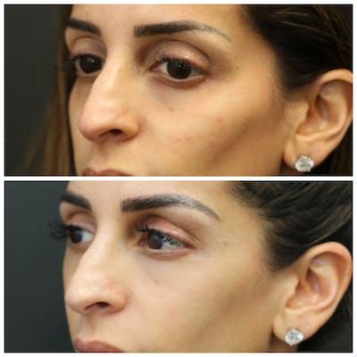 Aesthetic Facial Balancing Gallery - Patient 11681583 - Image 4