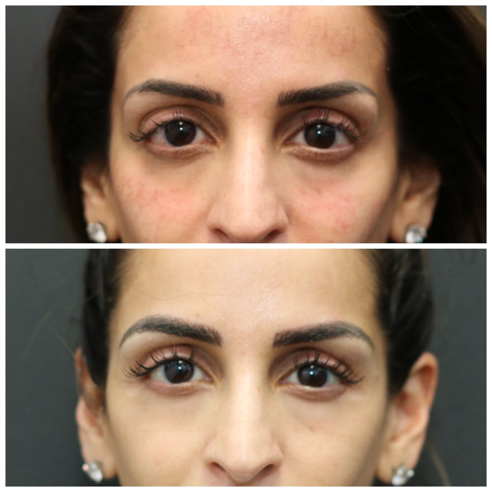 Aesthetic Facial Balancing Gallery - Patient 11681583 - Image 5
