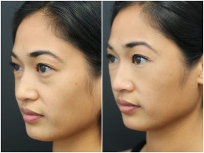 Aesthetic Facial Balancing Gallery - Patient 11681584 - Image 2
