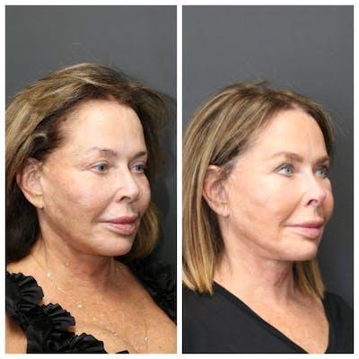 Aesthetic Facial Balancing Gallery - Patient 11681585 - Image 2