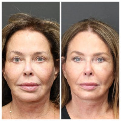 Aesthetic Facial Balancing Gallery - Patient 11681585 - Image 1