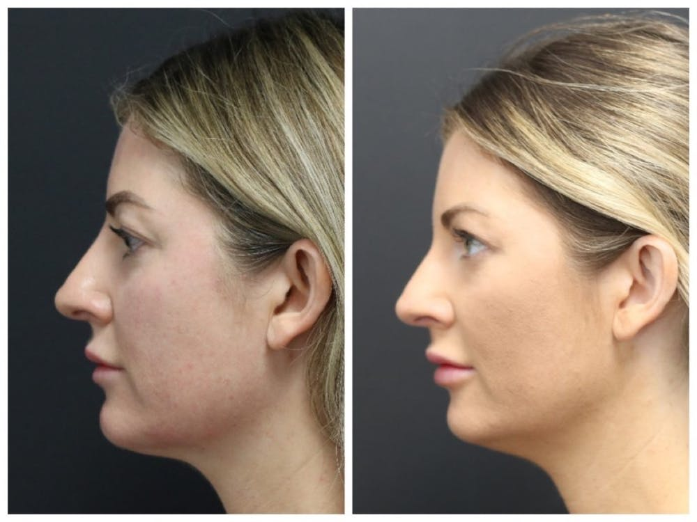 Aesthetic Facial Balancing Gallery - Patient 11681586 - Image 3