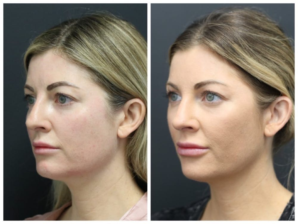 Aesthetic Facial Balancing Gallery - Patient 11681586 - Image 2