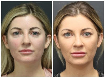 Aesthetic Facial Balancing Gallery - Patient 11681586 - Image 4