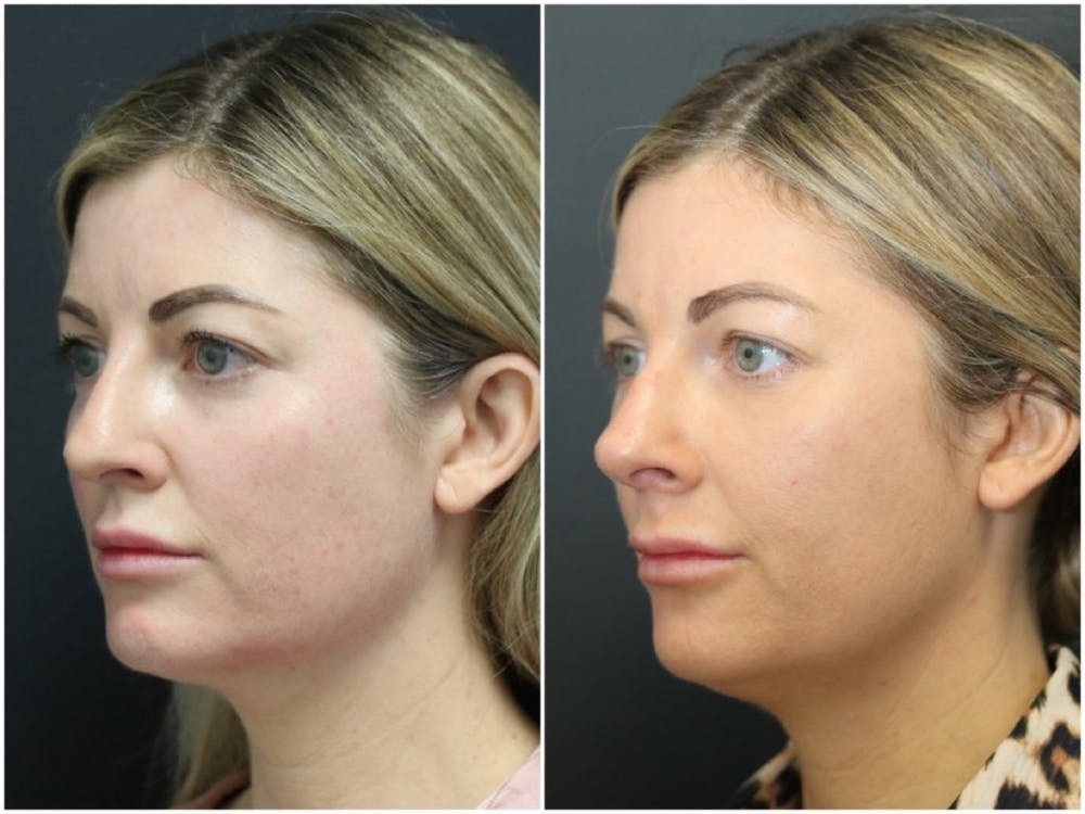 Aesthetic Facial Balancing Gallery - Patient 11681586 - Image 5