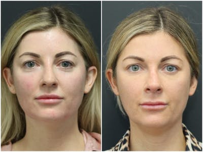 Aesthetic Facial Balancing Gallery - Patient 11681586 - Image 1