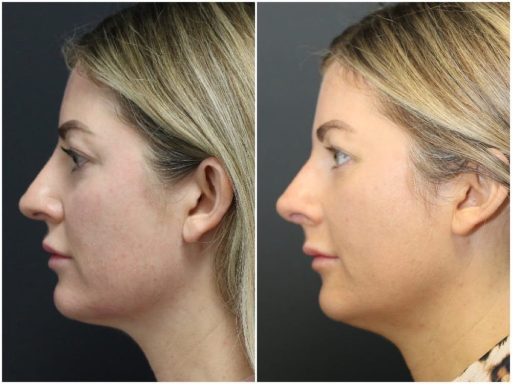 Aesthetic Facial Balancing Gallery - Patient 11681586 - Image 6