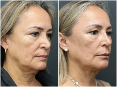 Aesthetic Facial Balancing Gallery - Patient 11681587 - Image 2