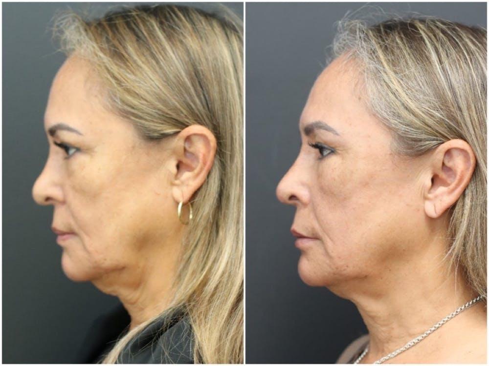 Aesthetic Facial Balancing Gallery - Patient 11681587 - Image 3