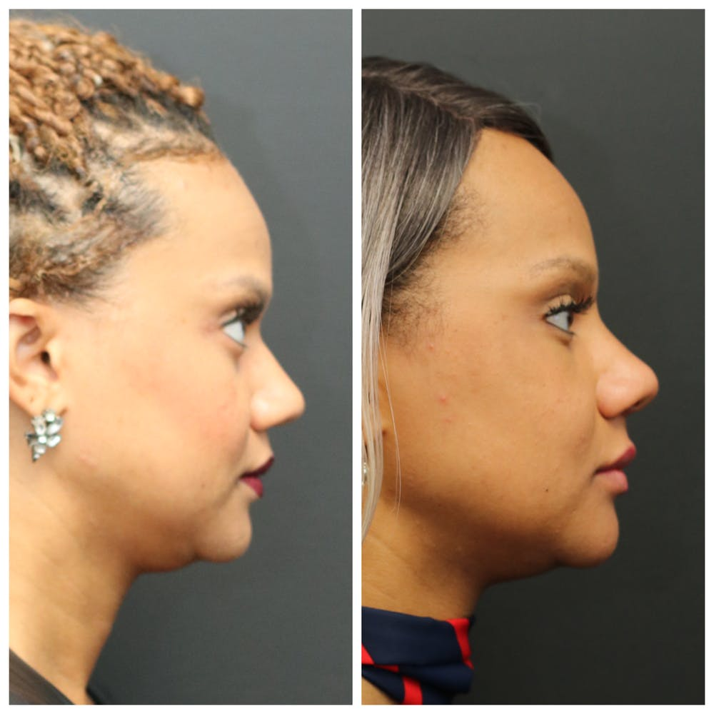 Aesthetic Facial Balancing Gallery - Patient 11681588 - Image 3