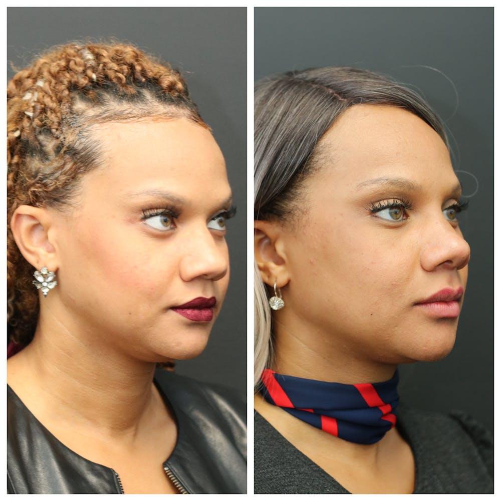 Aesthetic Facial Balancing Gallery - Patient 11681588 - Image 2