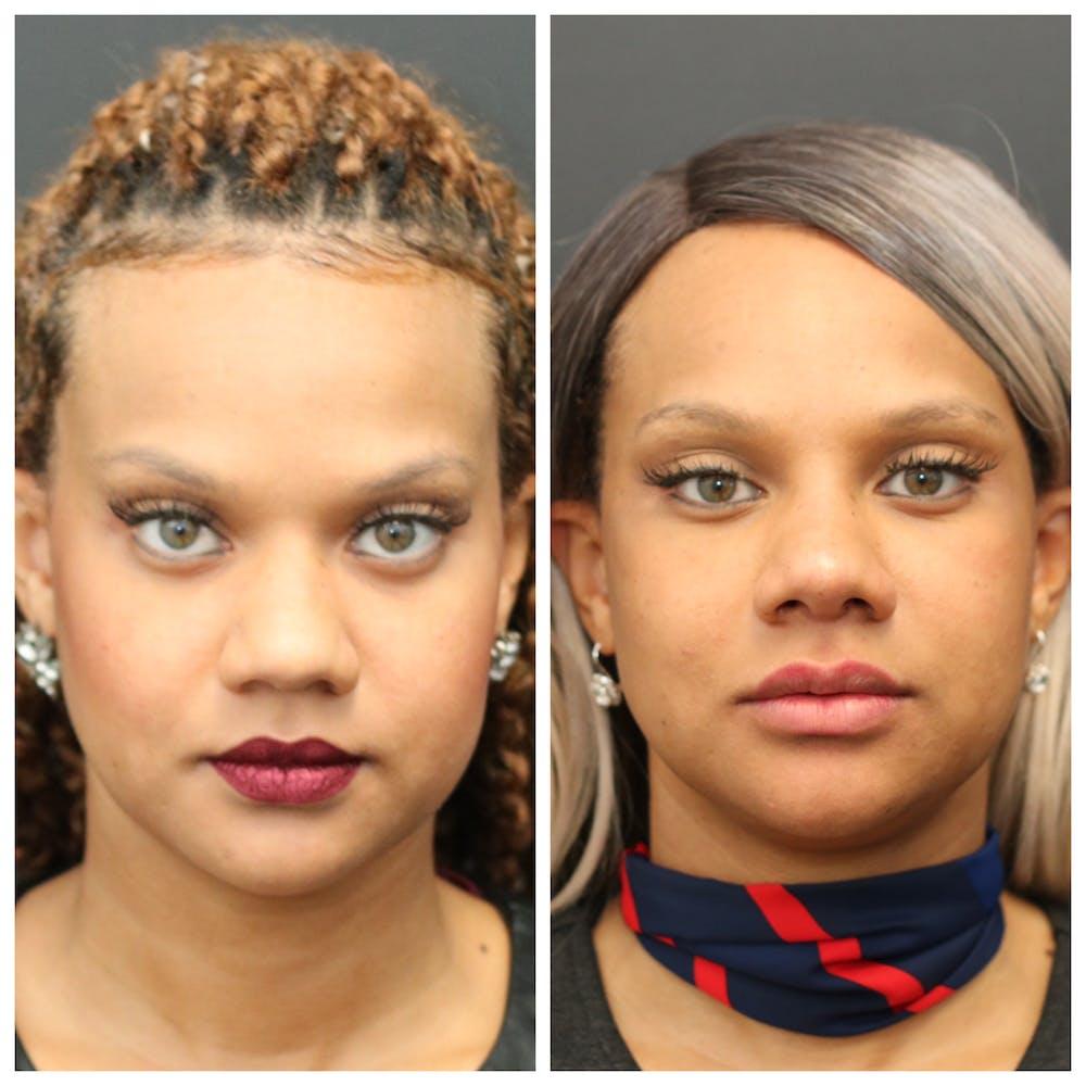 Aesthetic Facial Balancing Gallery - Patient 11681588 - Image 1