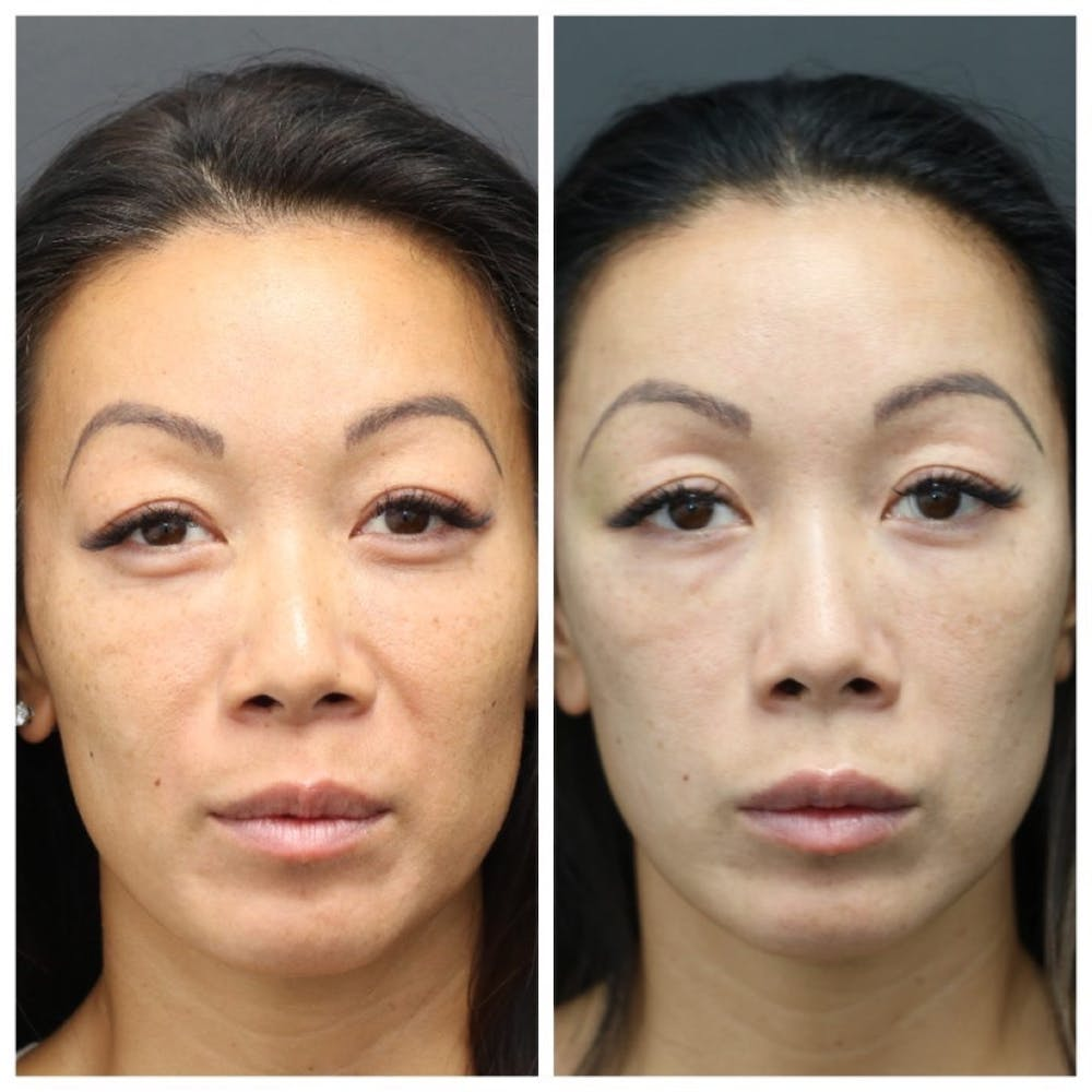 Aesthetic Facial Balancing Gallery - Patient 11681589 - Image 1