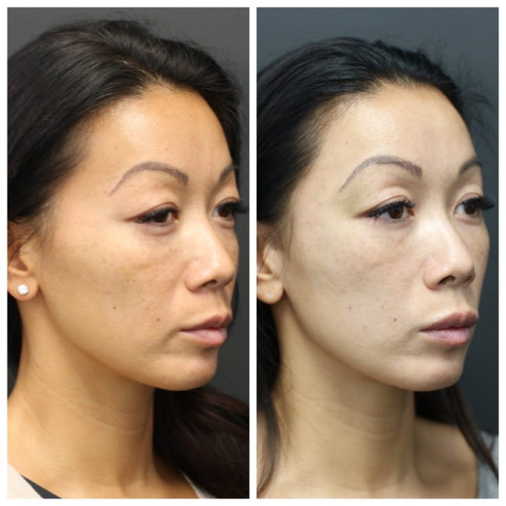 Aesthetic Facial Balancing Gallery - Patient 11681589 - Image 2