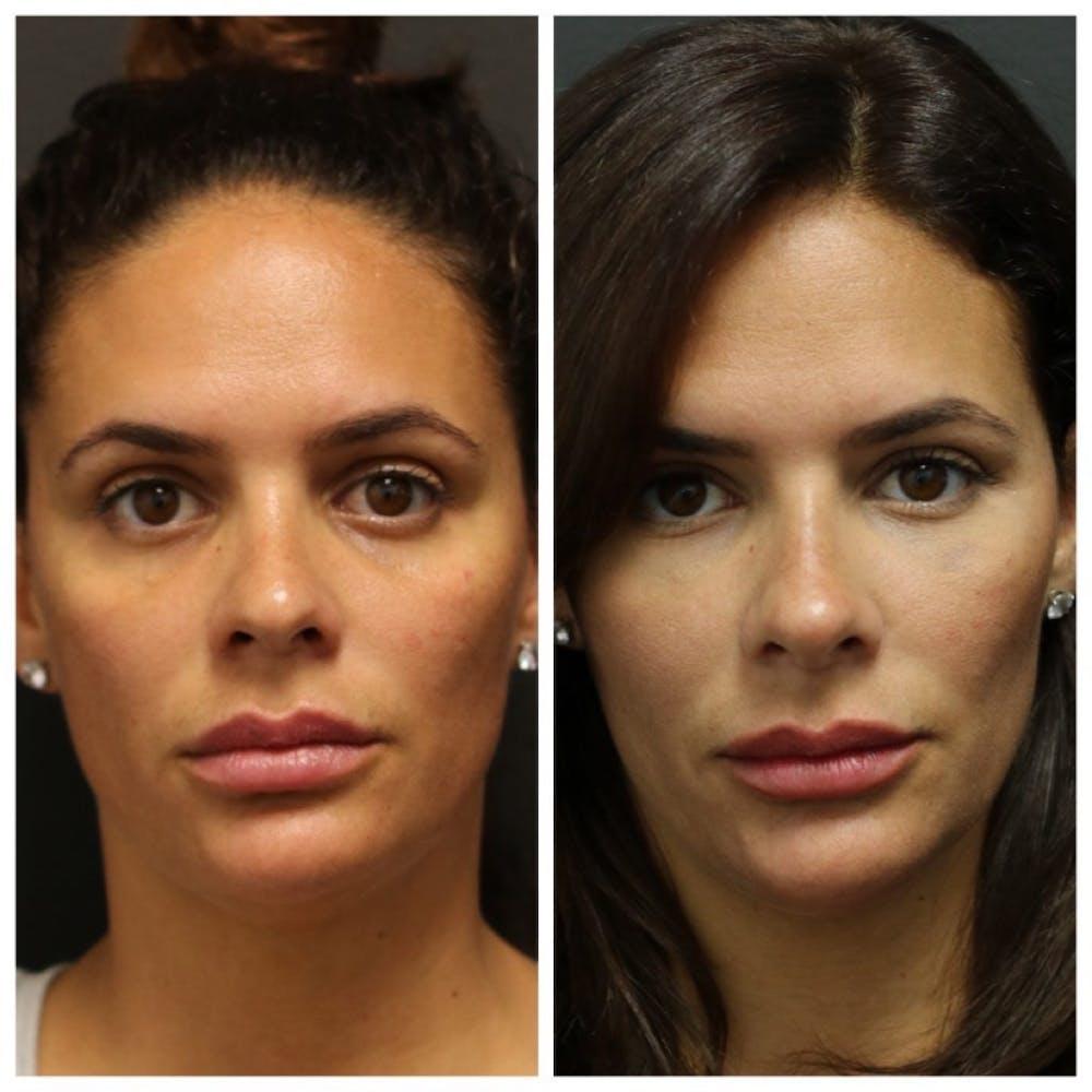 Aesthetic Facial Balancing Gallery - Patient 11681590 - Image 1