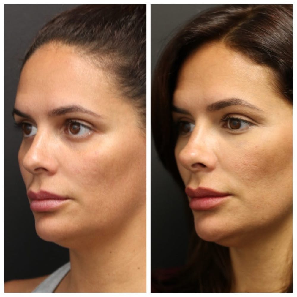 Aesthetic Facial Balancing Gallery - Patient 11681590 - Image 2