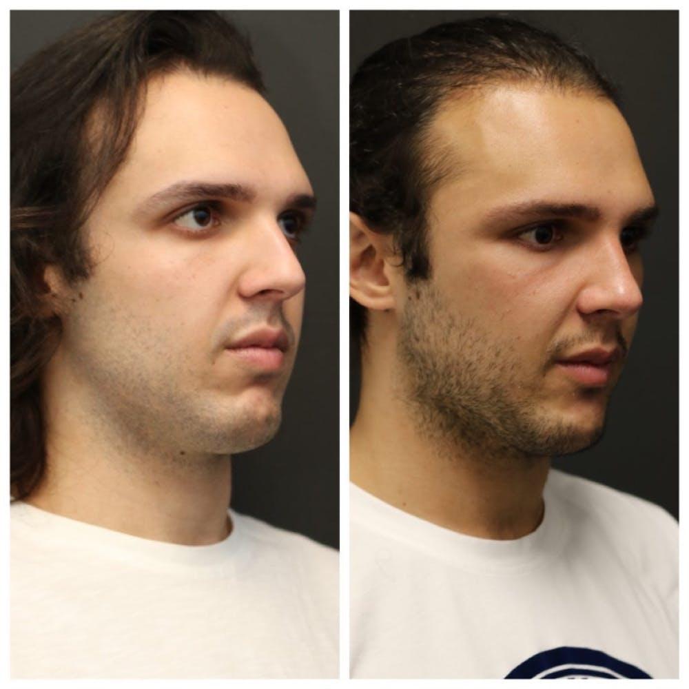 Aesthetic Facial Balancing Gallery - Patient 11681591 - Image 2