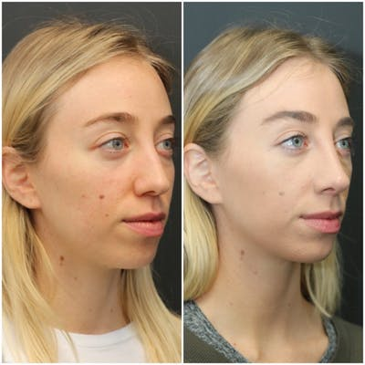 Aesthetic Facial Balancing Gallery - Patient 11681594 - Image 2