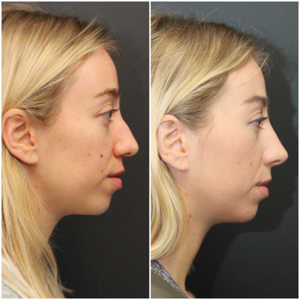 Aesthetic Facial Balancing Gallery - Patient 11681594 - Image 3