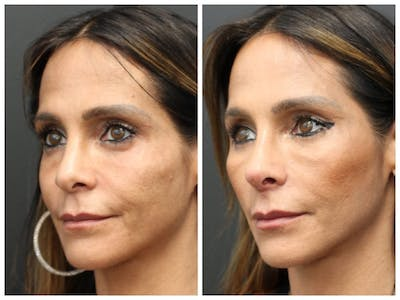 Aesthetic Facial Balancing Gallery - Patient 11681595 - Image 1