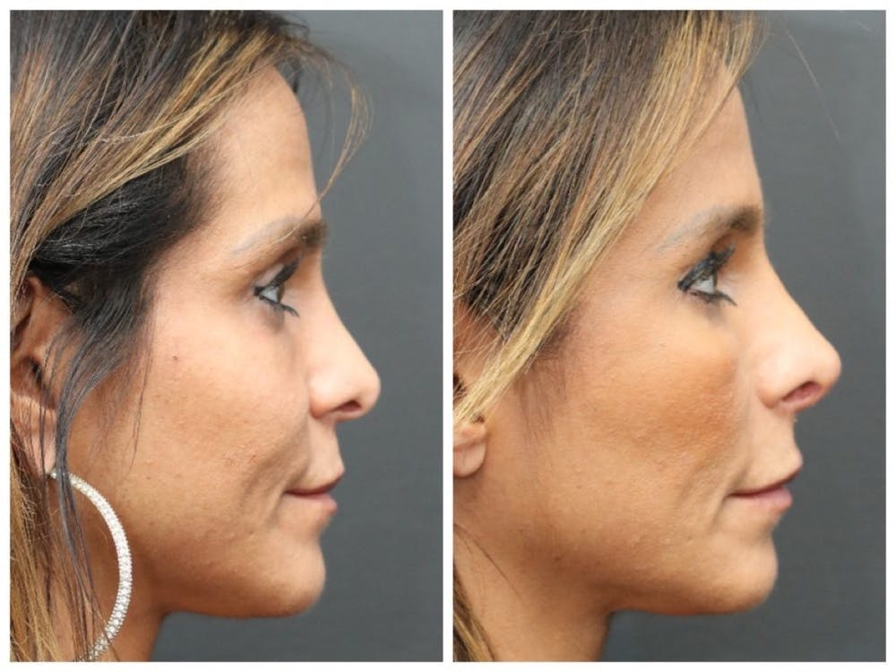 Aesthetic Facial Balancing Gallery - Patient 11681595 - Image 2