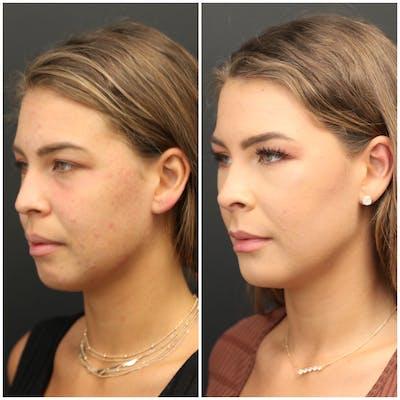 Aesthetic Facial Balancing Gallery - Patient 11681596 - Image 2