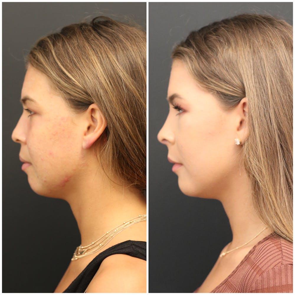 Aesthetic Facial Balancing Gallery - Patient 11681596 - Image 3