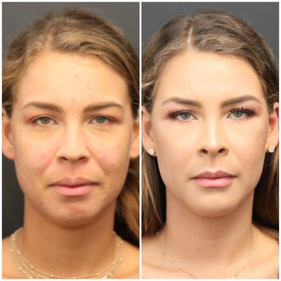 Aesthetic Facial Balancing Gallery - Patient 11681596 - Image 1