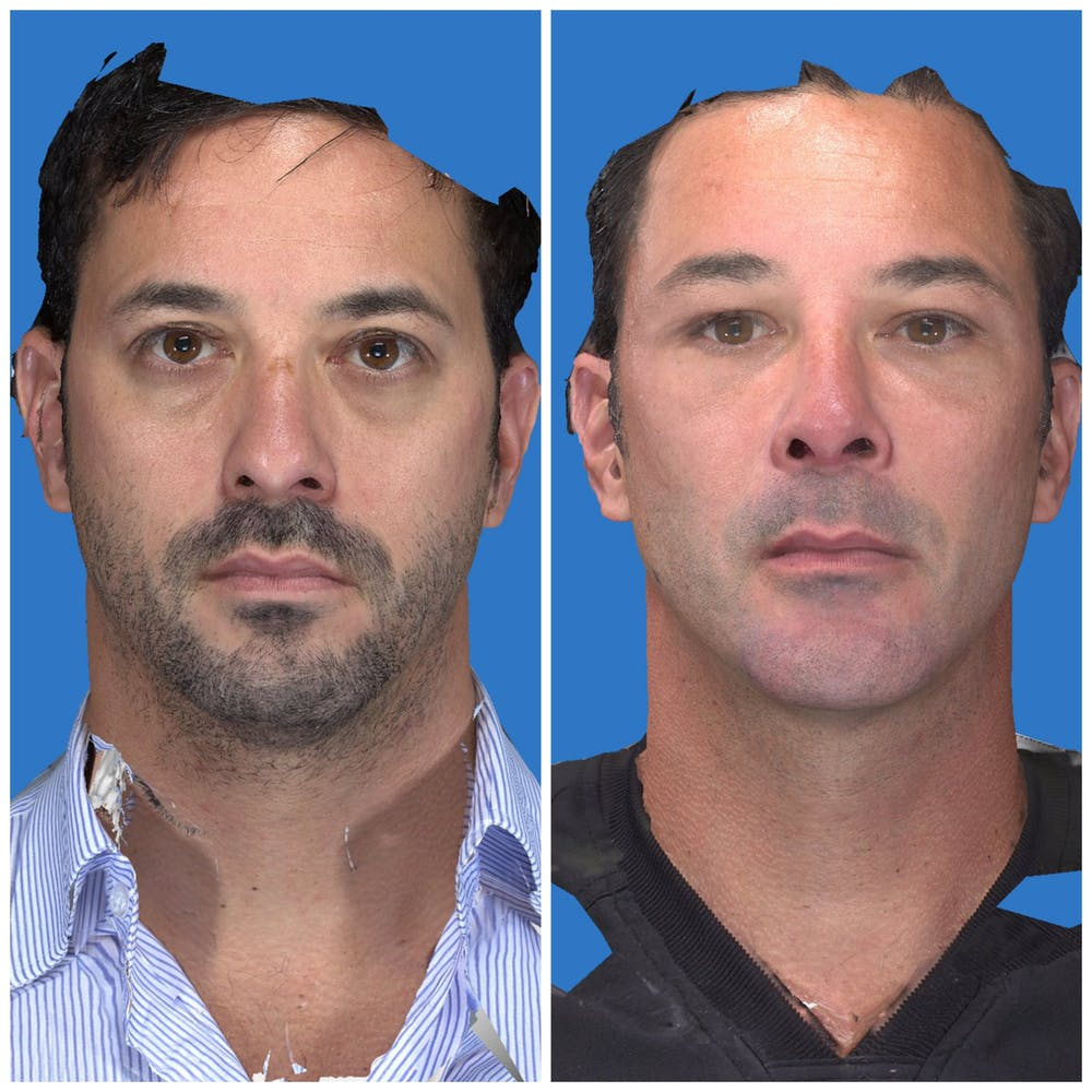 Aesthetic Facial Balancing Gallery - Patient 11681597 - Image 1